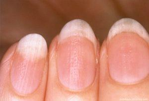 Lista de uñas que crecen mal para comprar Online – Los más vendidos