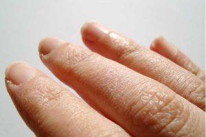Recopilación de manos muy secas para comprar online – Los 20 más solicitado