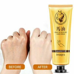 La mejor recopilación de crema para manchas de las manos para comprar