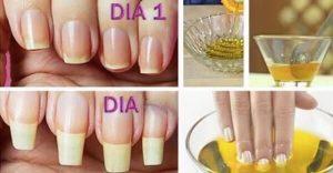 El mejor listado de remedios para que crezcan las uñas para comprar por Internet – Los 30 preferidos