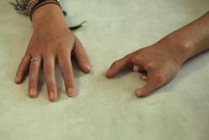 La mejor recopilación de muñones manos para comprar – Los más vendidos