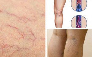 problemas vasculares piernas disponibles para comprar online