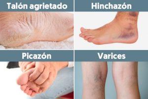 Catálogo para comprar Online problemas de circulacion sanguinea