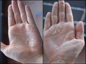 Listado de manos despellejadas dermatología para comprar Online
