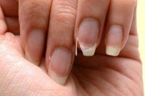 El mejor listado de uñas muy blandas para comprar Online