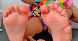 Lista de pies escaldados para comprar – Los preferidos por los clientes