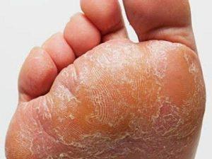 tratamiento hongos en los pies disponibles para comprar online – Los preferidos por los clientes
