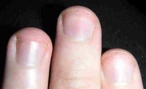 Ya puedes comprar Online los uñas azuladas – Los más solicitados