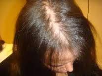 Catálogo para comprar on-line motivos de caida de pelo en mujeres – El Top Treinta