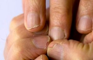 Reviews de remedio casero para las uñas debiles y quebradizas para comprar On-line