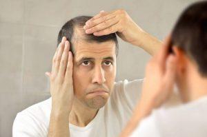 Selección de foro caida de pelo para comprar On-line – Los preferidos por los clientes
