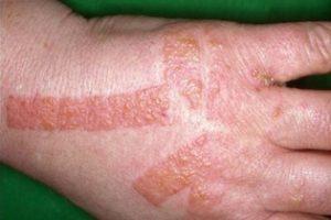 Ya puedes comprar online los crema de manos reaccion alergica