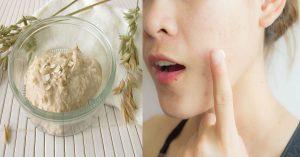 La mejor recopilación de mascarillas para el cabello para aclarar para comprar por Internet – El Top Treinta