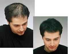Opiniones y reviews de prevenir caida de pelo hombres para comprar por Internet