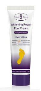 El mejor listado de crema para los callos de los pies para comprar por Internet – Los Treinta preferidos