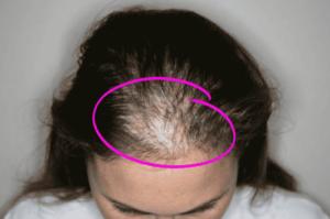Catálogo de causas de la caida de pelo en mujeres para comprar online – Los 30 preferidos
