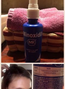 La mejor selección de caida de pelo minoxidil para comprar por Internet