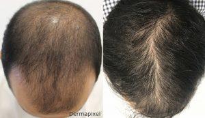 Catálogo para comprar Online tratamiento caida de pelo