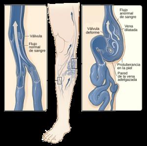 Recopilación de llagas en las piernas por mala circulacion para comprar por Internet – El TOP Treinta