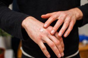 Opiniones y reviews de manos rojas frio para comprar On-line – Los 30 preferidos
