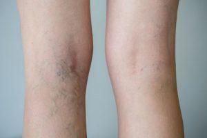 piernas amoratadas que puedes comprar online – El Top Treinta