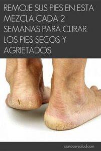 Catálogo de pies secos para comprar online – Los 30 más vendidos