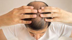 Opiniones y reviews de caida de pelo hombre causas para comprar en Internet