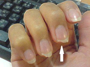 Listado de porque se abren las uñas para comprar Online