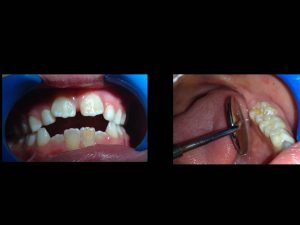 dientes en sierra que puedes comprar online – Los más vendidos