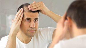 Reviews de caida de pelo en hombres jovenes para comprar on-line