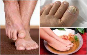 Catálogo de tratamiento hongos pies para comprar online – Los más solicitados