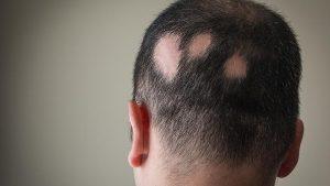 Lista de caida de pelo en circulos para comprar en Internet