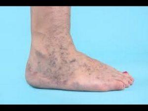 Recopilación de manchas en piernas por mala circulacion para comprar Online