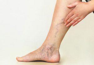 Listado de puntos rojos piernas circulacion para comprar Online
