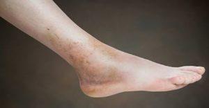 mala circulación piernas que puedes comprar por Internet
