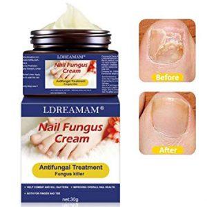 Catálogo de crema para hongos de pies y uñas para comprar online – Favoritos por los clientes