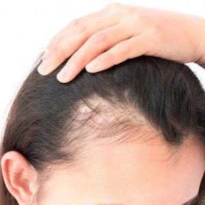 Lista de vitaminas para la caida de pelo para comprar en Internet