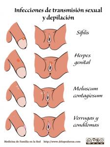 depilacion genitales mujer disponibles para comprar online – Los 20 más vendidos