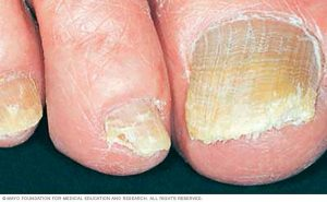 Ya puedes comprar on-line los uñas enfermas pies