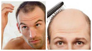 Reviews de evitar caida de pelo hombre para comprar en Internet