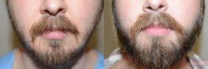 Opiniones y reviews de caida de pelo en la barba para comprar en Internet – Los más vendidos