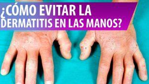 dermatitis en las manos cremas disponibles para comprar online – Los 20 preferidos