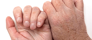 Catálogo de manos secas para comprar online – Los preferidos por los clientes