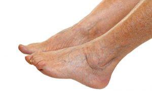 Catálogo de mala circulacion en las piernas sintomas para comprar online