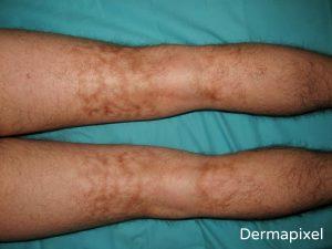 Catálogo de manchas en las piernas por mala circulacion para comprar online