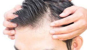 causas de caida de pelo en mujeres que puedes comprar Online