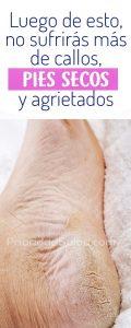 Listado de crema de pies casera para comprar Online – Los más vendidos