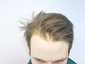 La mejor lista de caida de pelo y caspa para comprar por Internet