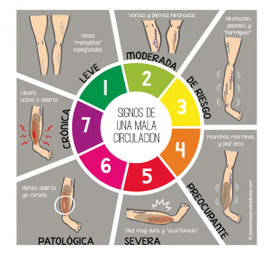 El mejor listado de dolor piernas circulacion para comprar on-line – Los mejores