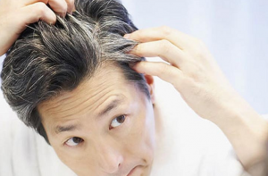 La mejor lista de caida de pelo repentina para comprar – Los 30 más solicitado
